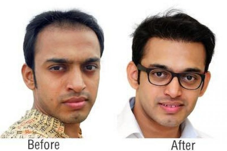 Overcome Baldness With These Richfeel Hair Treatment Reviews