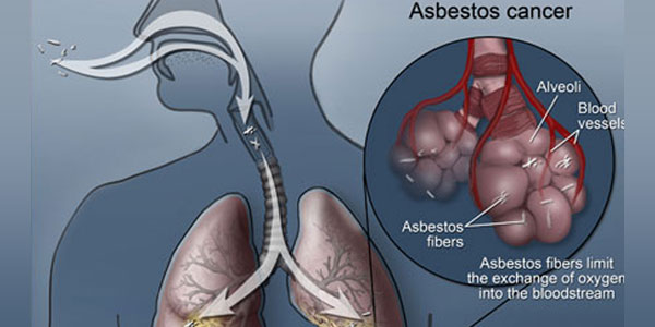 Asbestos Health Risks